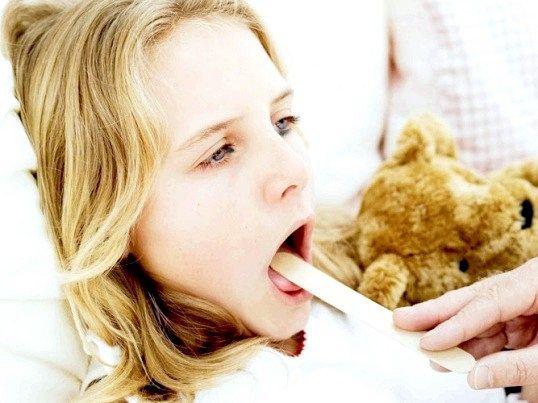 Як впоратися з ангіною у дитини