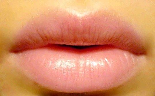 Як збільшити губи за допомогою ін'єкцій