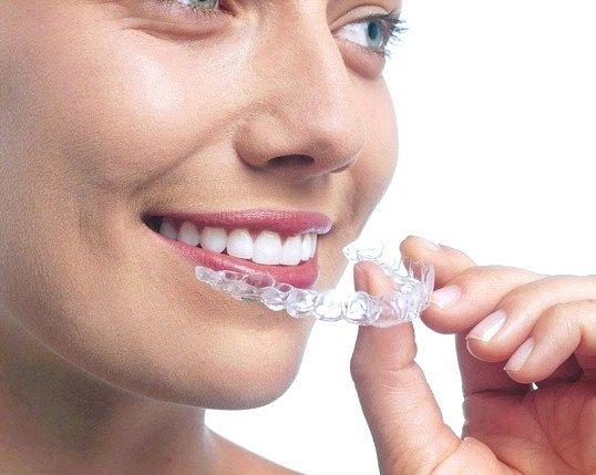 Чи можна цілуватися з брекетами на зубах