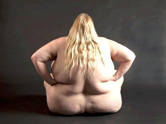 Ожиріння: причини, симптоми, діагностика та лікування