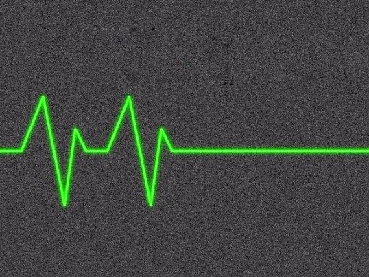 У чому відмінність клінічної смерті від коми