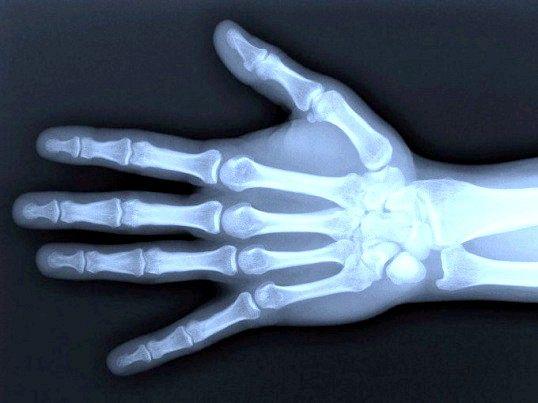Чи шкідливий рентген